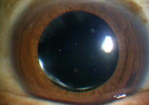 眼内レンズ挿入後(術後)…混濁はなくなり視力が改善します。